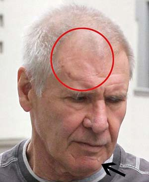 Harrison Ford Scars