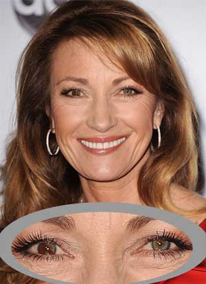 Jane Seymour eye heterochromia